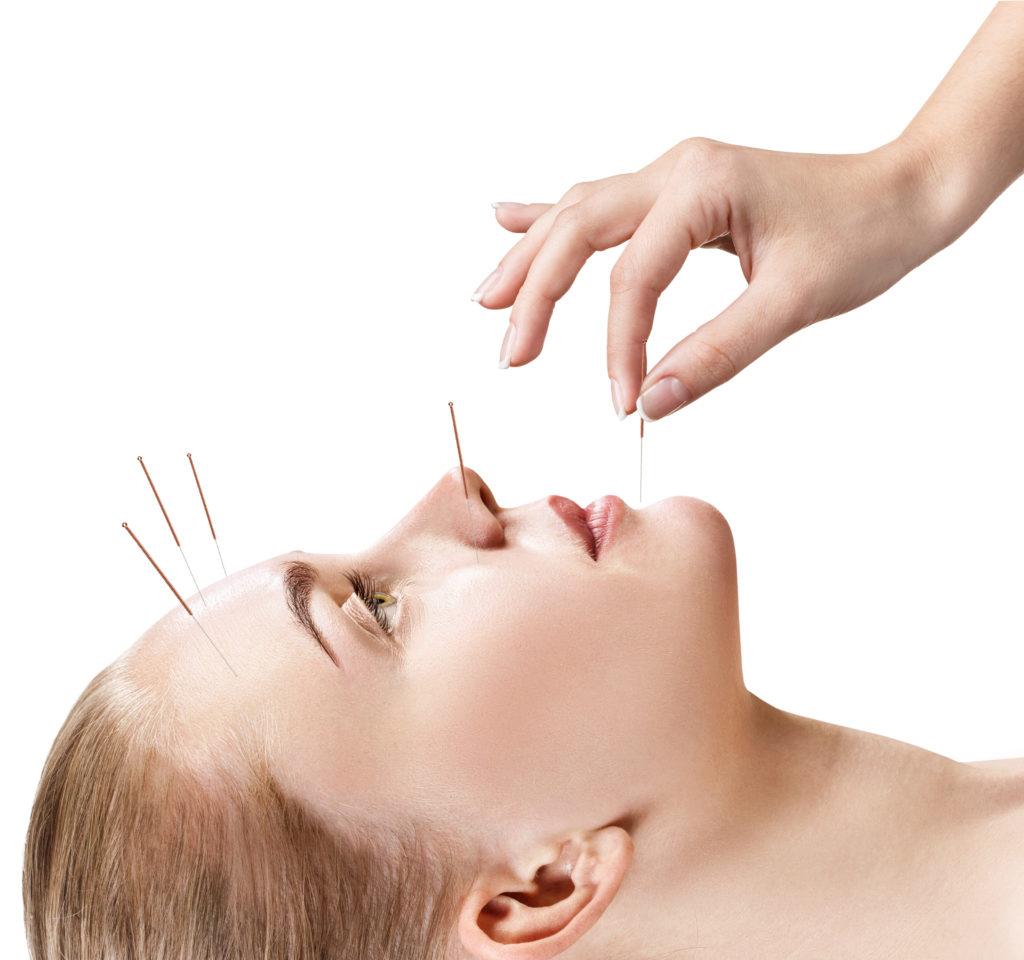 Akupunktur nach Boel