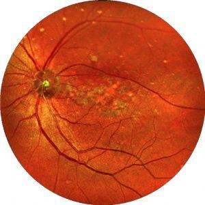 Die Behandlung einer Makuladegeneration in der Praxis für alternative Augenheilkunde