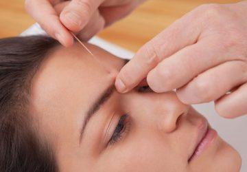 Augenakupunktur bei Netzhauthautdegeneration