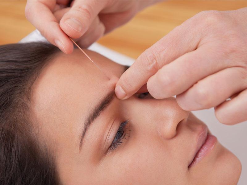 Augenakupunktur in der Praxis für alternative Augenheilkunde